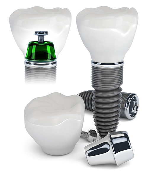 Teeth Implants in Amarillo