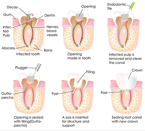 Puckett Root Canal